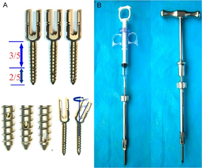 (A) The design of the CICPS; (B) The CICPS connects to the specially designed bone cement syringe and the T-shaped handle through an adapter.