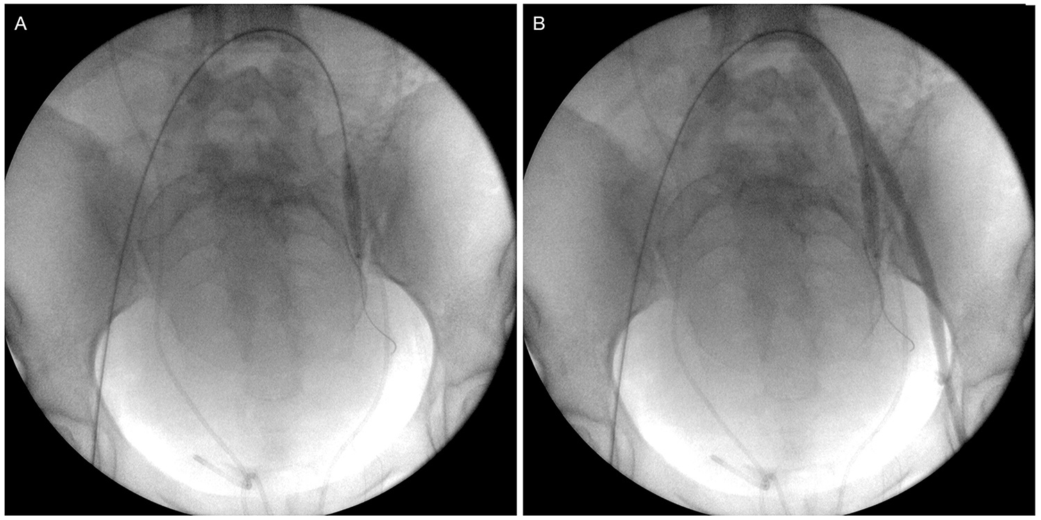 Balloon catheter placement and testing. (A) Inflated balloon catheter positioned in the left internal iliac artery. (B) Retrograde contrast injection through the left femoral sheath confirming the correct placement of the balloon and the absence of flow distally into the internal iliac branches.