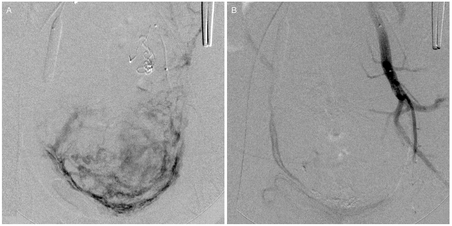 (A) Angiographic images obtained before embolization depicting the enhancement of the uterine vessels. (B) Final angiographic results after embolization. Note the absence of enhancement in the uterine territory and the flow arrest at the left internal iliac artery branches.