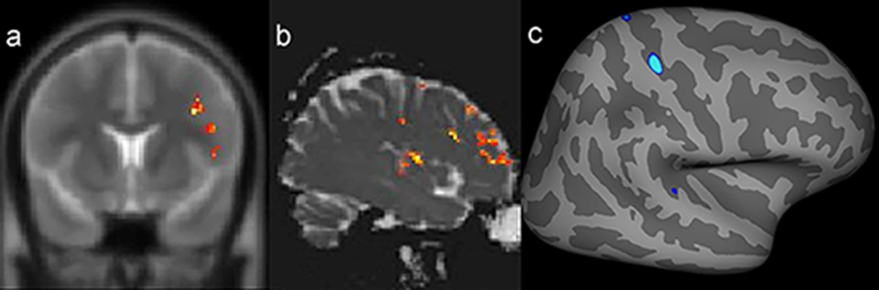 Example of a patient with a presumed epileptogenic zone in the left frontotemporal region (patient 7) that was concordant with three quantitative measures. The results of postprocessing of T2 relaxometry maps by Statistic Parametric Mapping (SPM12) software (a: coronal plane) and mean diffusion maps (b: sagittal plane), as well as cortical thickness by FreeSurfer (c: quadrature decoder [QDEC]), showing abnormalities notably in the left frontal lobe.