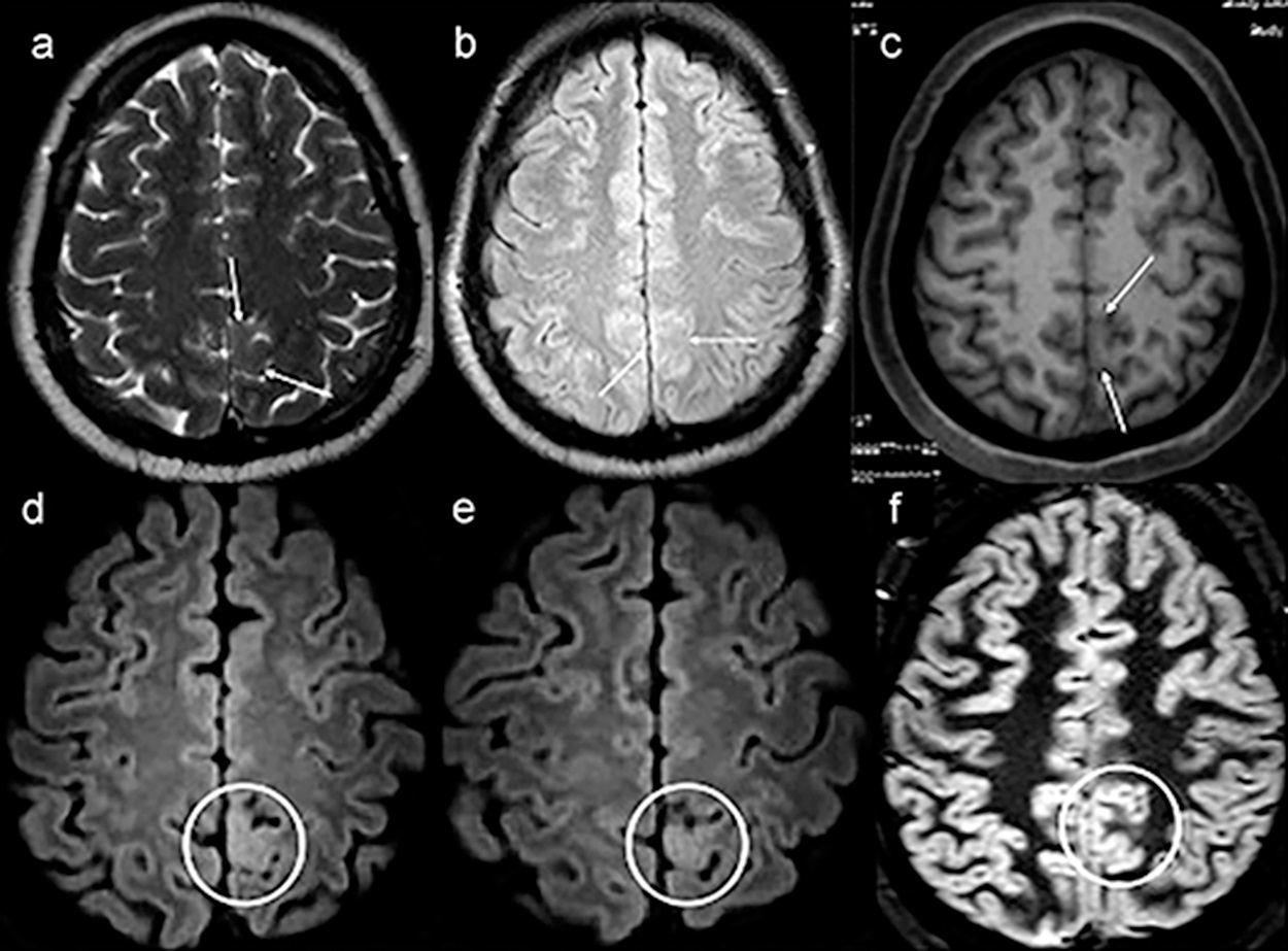 Example of a patient with no lesion (patient 39) in the first magnetic resonance imaging (MRI), exemplified by axial T2-weighted MRI (a), axial nonvolumetric fluid attenuation inversion recovery (FLAIR) (b) and axial reconstruction of three-dimensional (3D) T1-weighted MRI (c). After targeted visual evaluation guided by video-electroencephalography and 3D-FLAIR sequence, discrete focal cortical thickening and a blurring of the transition between the white and gray matter highlighted inside the white circles in the axial reconstructions were identified (d,e). The anatomohistopathological result was focal cortical dysplasia (f,c,d). Even retrospectively, it is difficult to characterize any structural change in the routine protocol sequences for epilepsy (white arrows) (a–c). The axial double inversion recovery (DIR) sequence (f) is also negative (white circle).