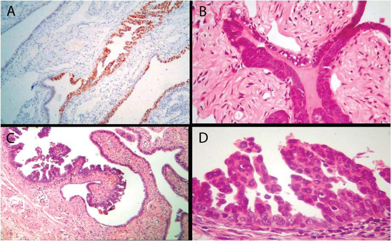 Spectrum of tubal fimbrial lesions. (A) Epithelial cells expressing p53 (p53 signature), (B) hyperplastic tubal epithelium with atypia, (C) and (D) STIC.