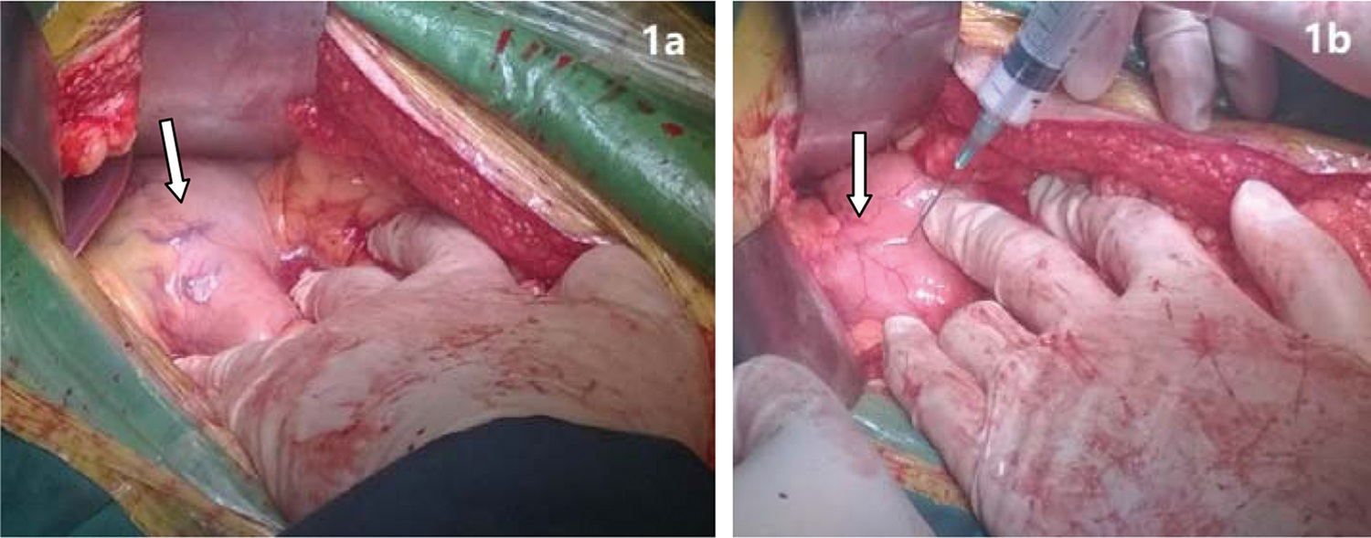 Varicose veins before and after treatment. a) Varicose veins at lesser gastric curvature. b) Occlusion of varicose veins after injection of polidocanol foam.