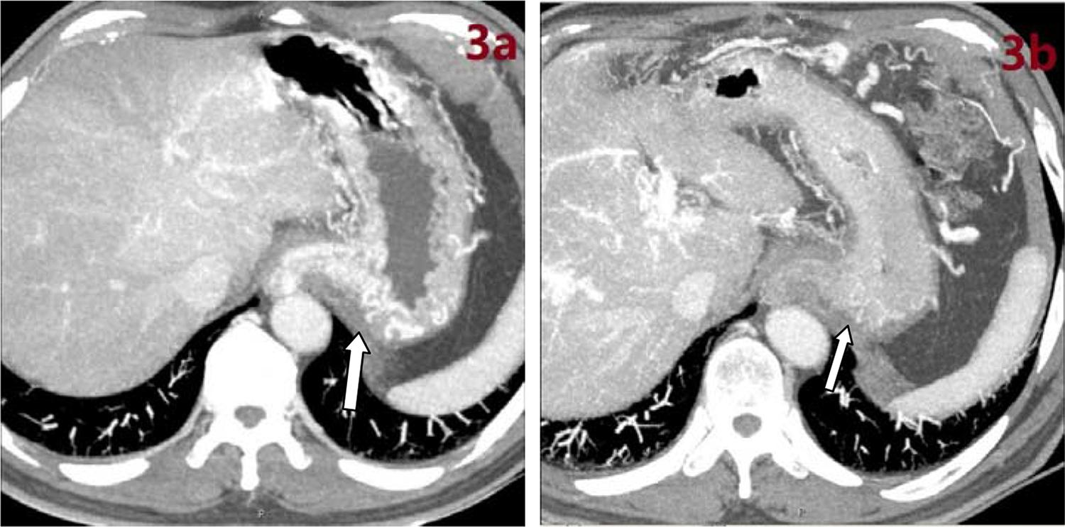 Perioperative enhanced CT images. a) Gastroesophageal varices on preoperative enhanced CT. b) Absence of varicose veins on postoperative enhanced CT after foam sclerotherapy in the same patient.