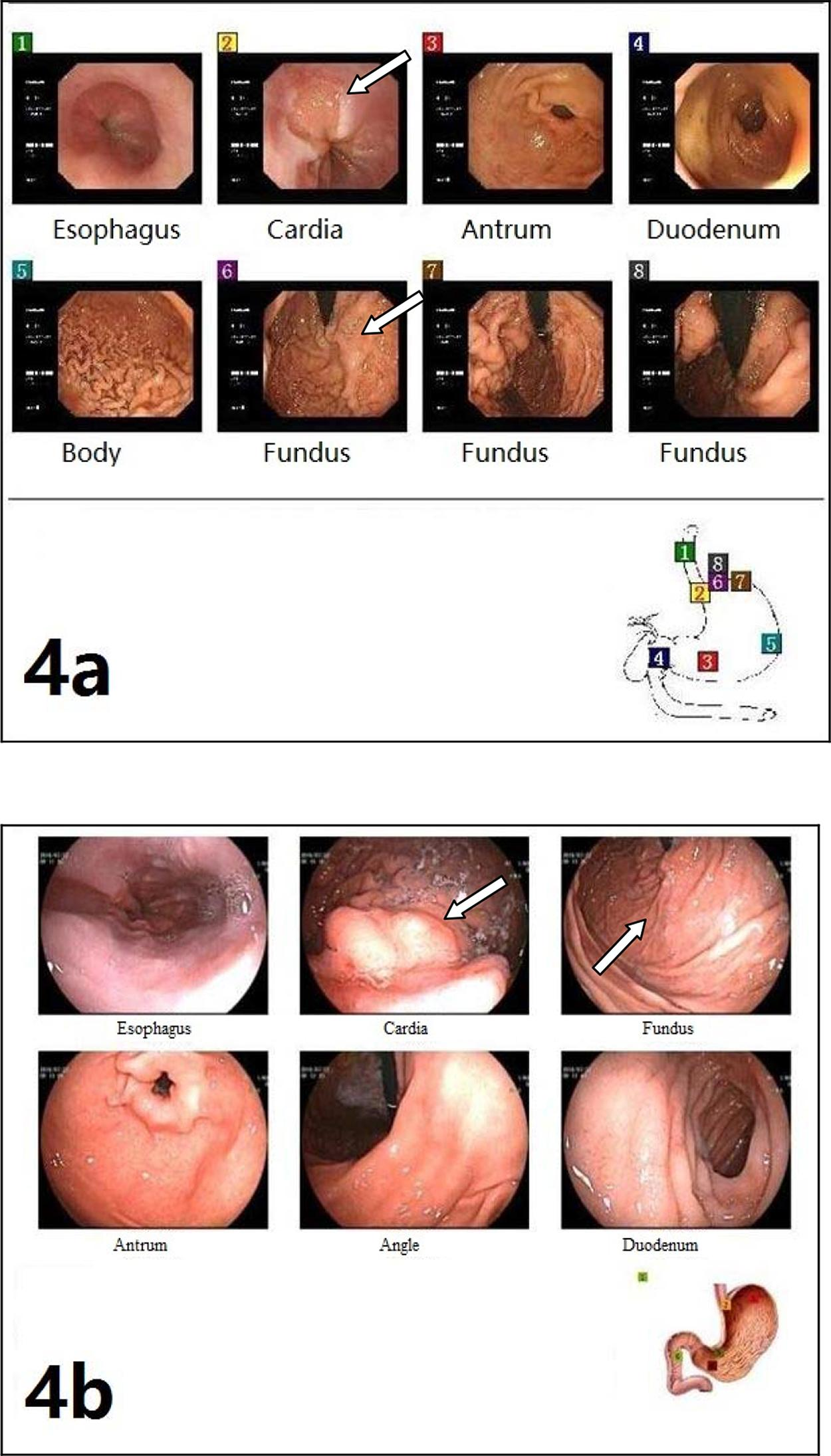 Endoscopy images. a) Preoperative endoscopy showing gastroesophageal varices. b) Endoscopy review of the same patient showing obviously decreased gastric varices but residual esophageal varices postoperatively.
