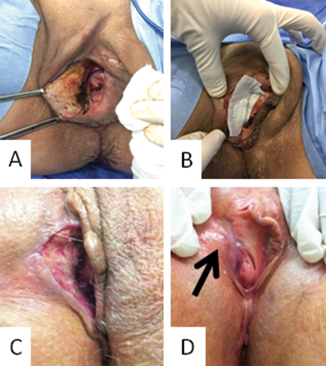 Photograph of the vulvar region of a patient with the secondary healing strategy: A. Vulvar size defect after resection (immediately after surgery); B. Curative approach with the hydrofiber; C. Follow-up 2 weeks after surgery; D. follow-up 7 weeks after surgery.