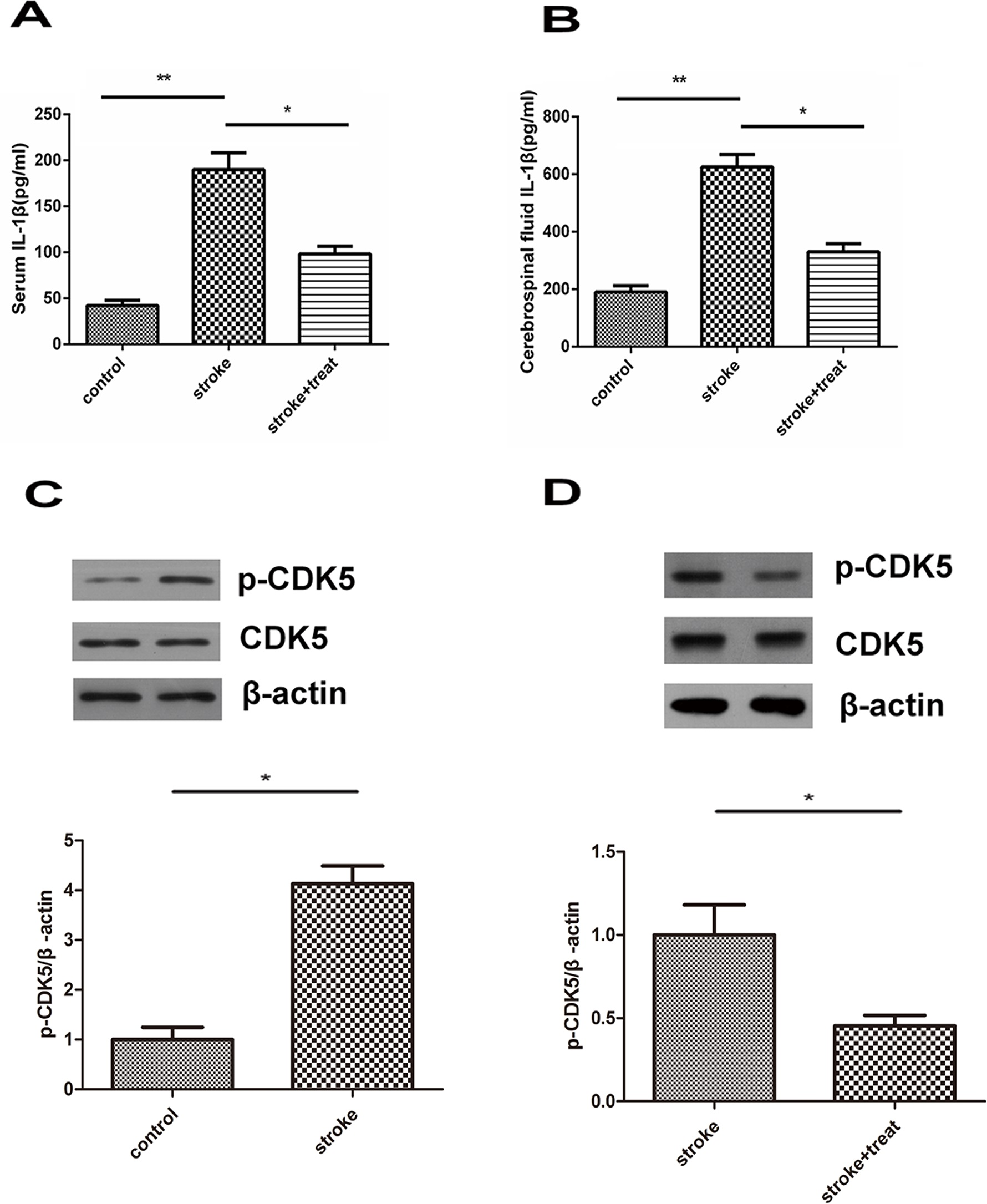 IL-1β and CDK5 levels in a murine model of ischemic stroke. Animals were divided into control, ischemic stroke, or ischemic stroke + hypothermia treatment groups. Serum IL-1β content (A) and IL-1β level in the brain tissue (B) were assessed by ELISA. Six animals from each group were analyzed. (C, D) The protein expression of CDK5 and p-CDK5 in intracerebral ischemic penumbra or control brain tissues was measured by Western blotting. Six animals from each group were analyzed. *p<0.05; **p<0.01.