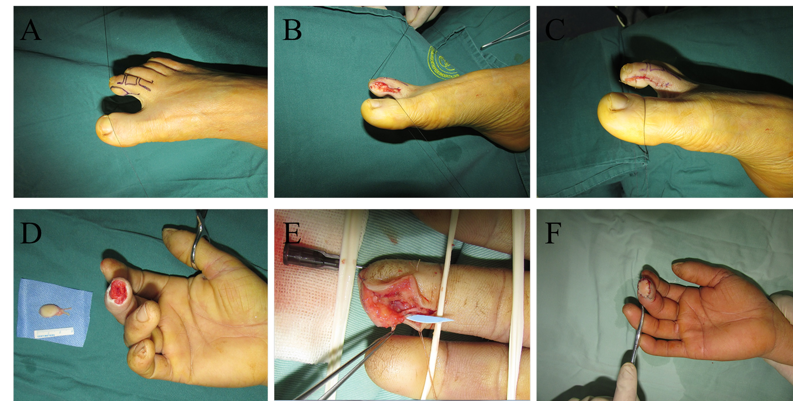 A. Flap design at the donor site before the operation. B. The flap was dissected. C. The donor site was closed without a skin graft. D. The harvested flap and the recipient site before transplantation. E. The anastomosis during transplantation. F. The flap after transplantation.