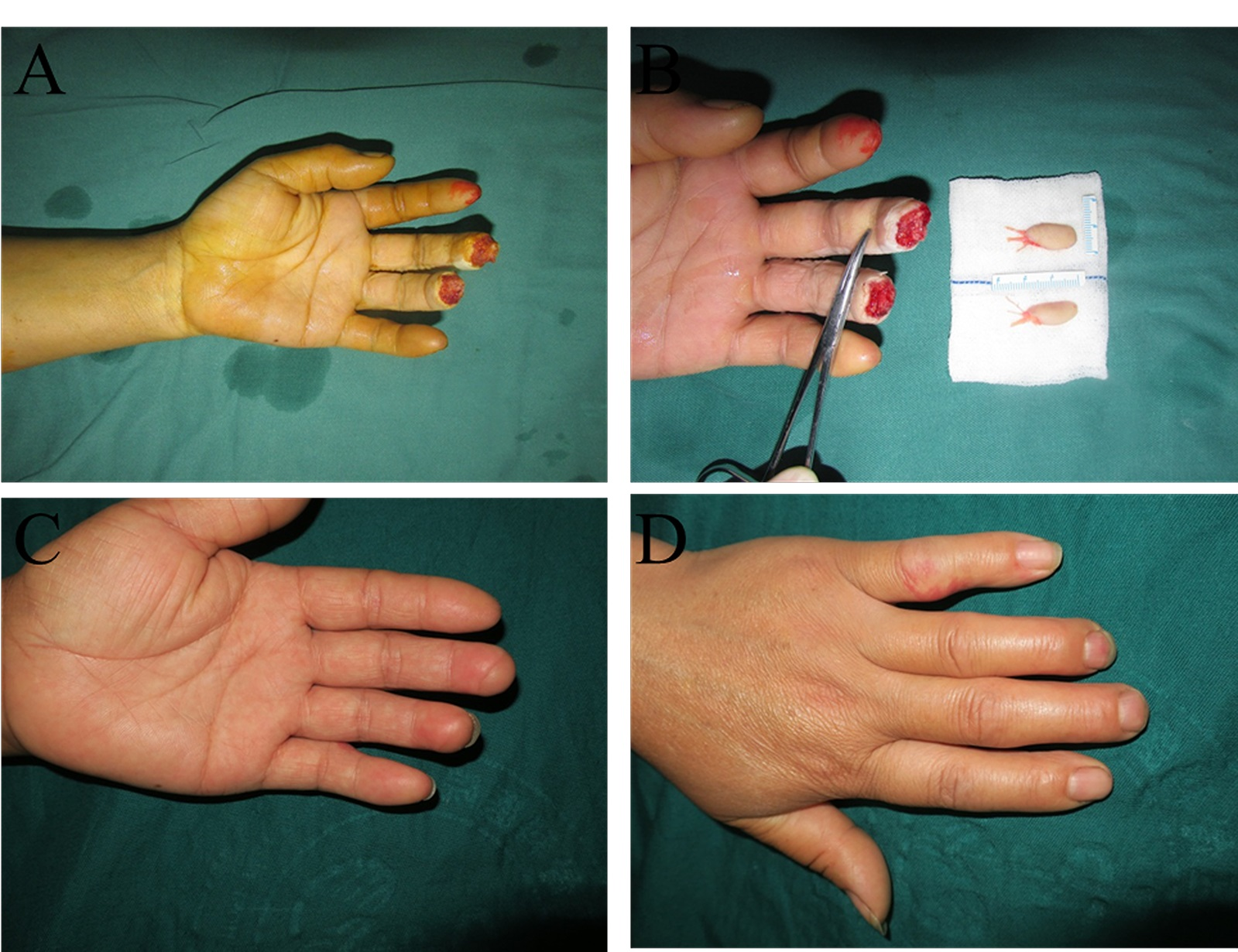 In this patient, the injured fingertips after debridement (A), the flaps before transplantation (B), and the volar (C) and dorsal (D) appearances after 6 months. In this case, the patient injured the left middle and ring fingertips. The middle finger received an artery-only free medial flap of the second toe, while the ring finger received a routine free medial flap of the third toe.