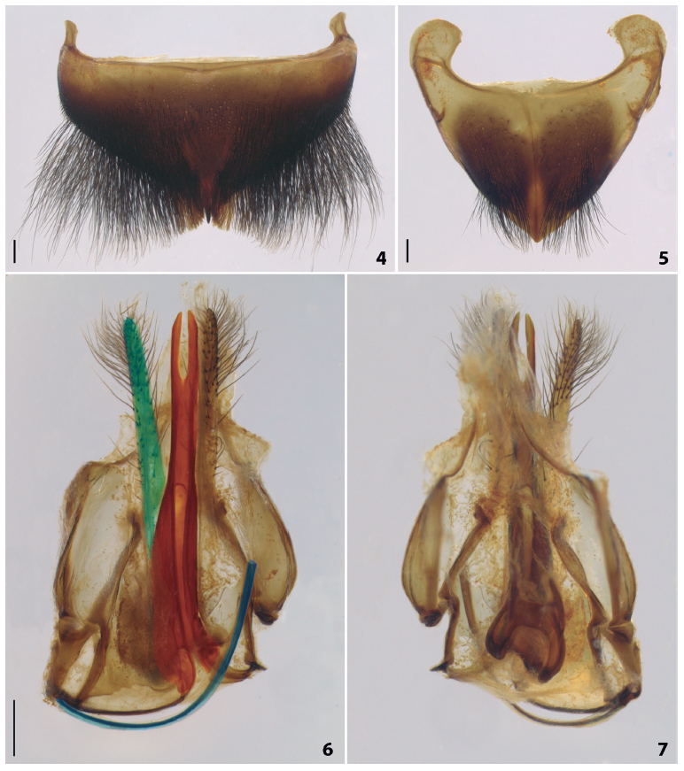 Gynandromorph of Xylocopa (Neoxylocopa) brasilianorum from Jundiaí, São Paulo (Brazil). (4) Tergum 6 in dorsal view. (5) Sternum 6 in ventral view. (6) Genitalia in ventral view. (7) Genitalia in dorsal view. Green: gonostylus, red: sting shaft, blue: lancet. Scale bars = 0.5 mm.