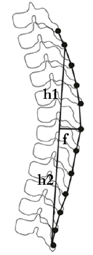 Marcadores reflexivos sobre os processos espinhosos das vértebras torácicas (de T1 a T12) e as retas f e h (h1 e h2).