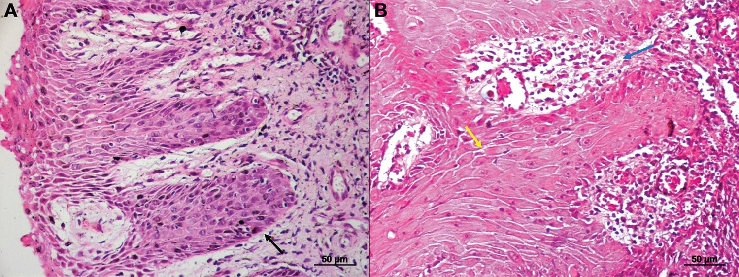 Paraffin histological section of the skin lesion of a patient affected by localized cutaneous leishmaniasis caused by L. (V.) panamensis showing in A) acanthosis (black arrow), and in B) spongiosis (yellow arrow) and lymphohistiocytic exocytosis (blue arrow) (Hematoxilin-Eosin staining)