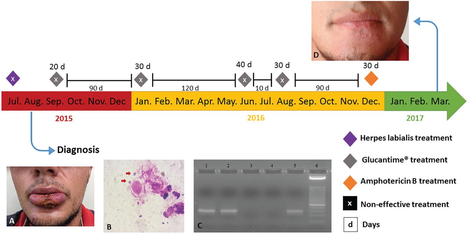 – Patient's clinical history: A) Lesion on the lower lip at the time of leishmaniasis diagnosis (one-month-old); B) Direct search of parasite in the material obtained by scraping of the lesion, stained by Giemsa; C) Polymerase chain reaction (PCR) showing the 70-bp fragment of the kinetoplast minicircle DNA (kDNA) from subgenera Leishmania (Viannia) sp.; lane 1: the patient's lesion sample; lane 2: positive control [DNA from blood sample containing 5x10-3 promastigotes of Leishmania (Viannia) braziliensis]; lane 3: the patient's blood sample; lane 4: negative control (sterile water); lane 5: positive control [DNA from promastigotes of Leishmania (Viannia) braziliensis]; lane 6: molecular weight marker 25-bp ladder; D) Patient after treatment with amphotericin B (19 months after correct diagnosis)