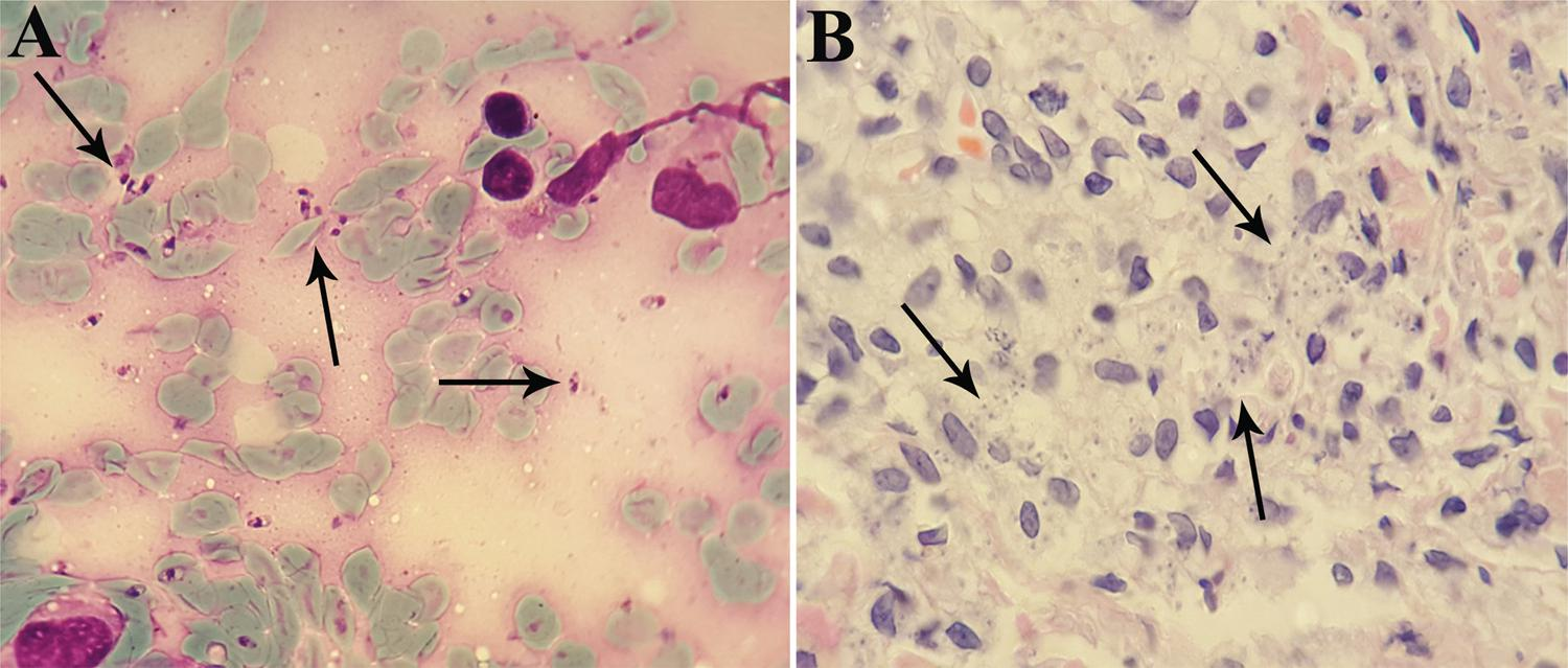 - A) Abundant intracellular amastigote forms of Leishmania  major (arrows) in the Giemsa-stained smear; B) in the skin biopsy stained with Hematoxylin and Eosin, prepared from an ulcerated area of the left wrist and forearm of the patient with disseminated cutaneous lesions (original magnification: ×1,000)