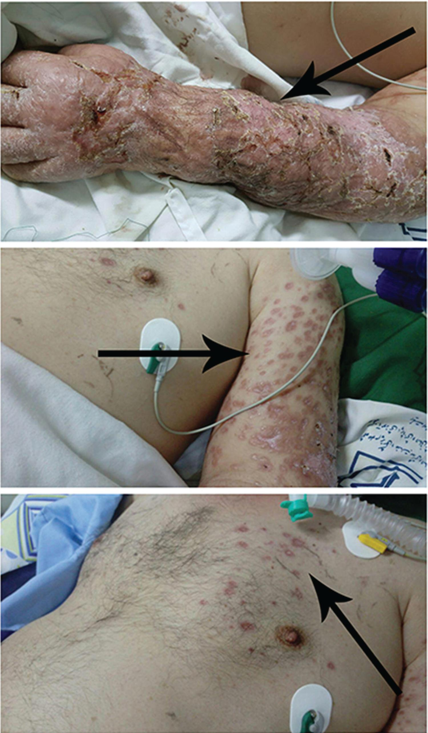 - Patient with atypical disseminated cutaneous leishmaniasis (DCL) showing good response to treatment with amphotericin B and regression of his cutaneous lesions