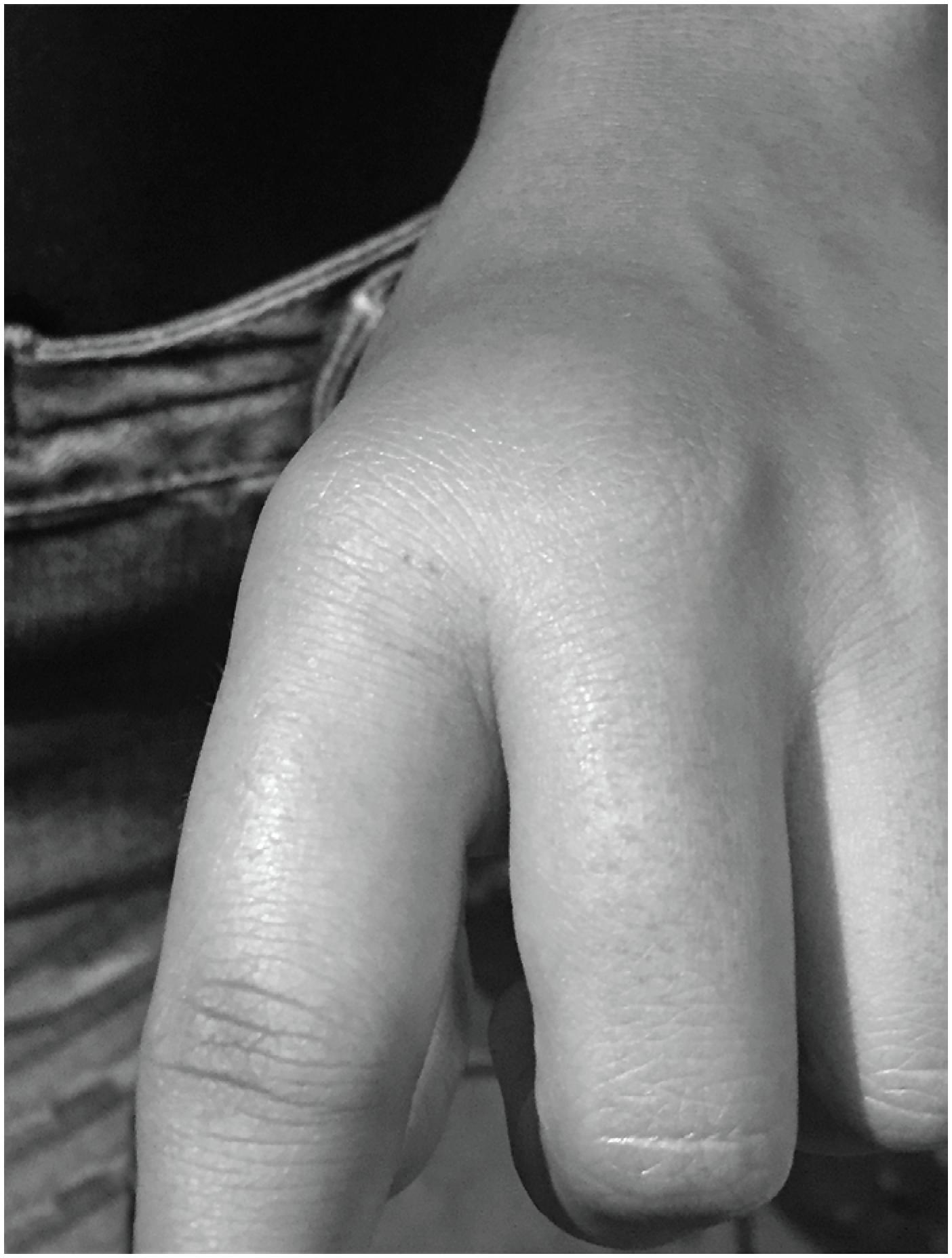 Swelling of the victim's hand bitten by a Thamnodynastes pallidus specimen