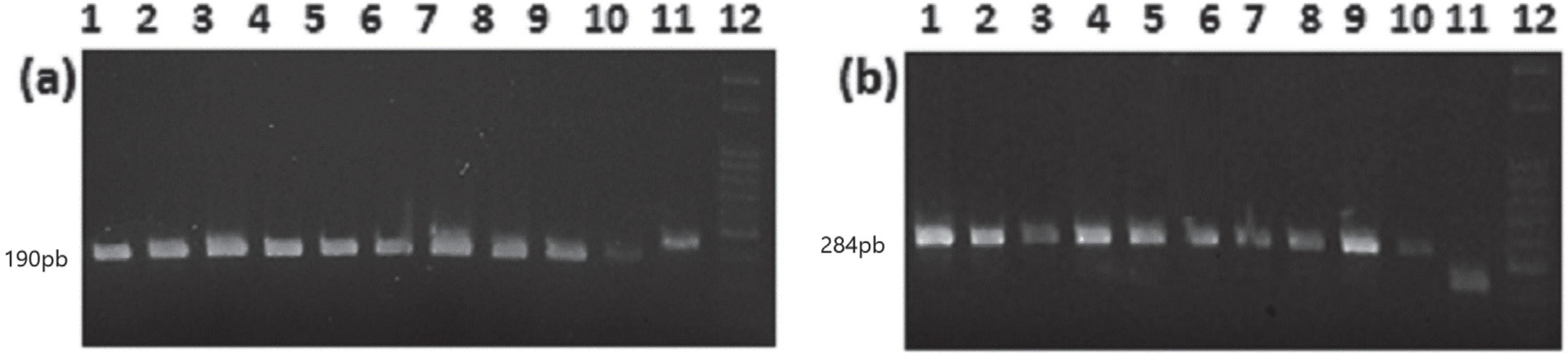 Agarose gel showing the limit of detection for JCV (190 pb): A) and BKV (284 pb); B) plasmids. Lines 1 to 10: Plasmids ranging from 1010 to 101 copies; line 11: the human beta-actin used as an endogenous control (220 pb); line 12: 100 bp DNA ladder (New England Biolabs, USA)