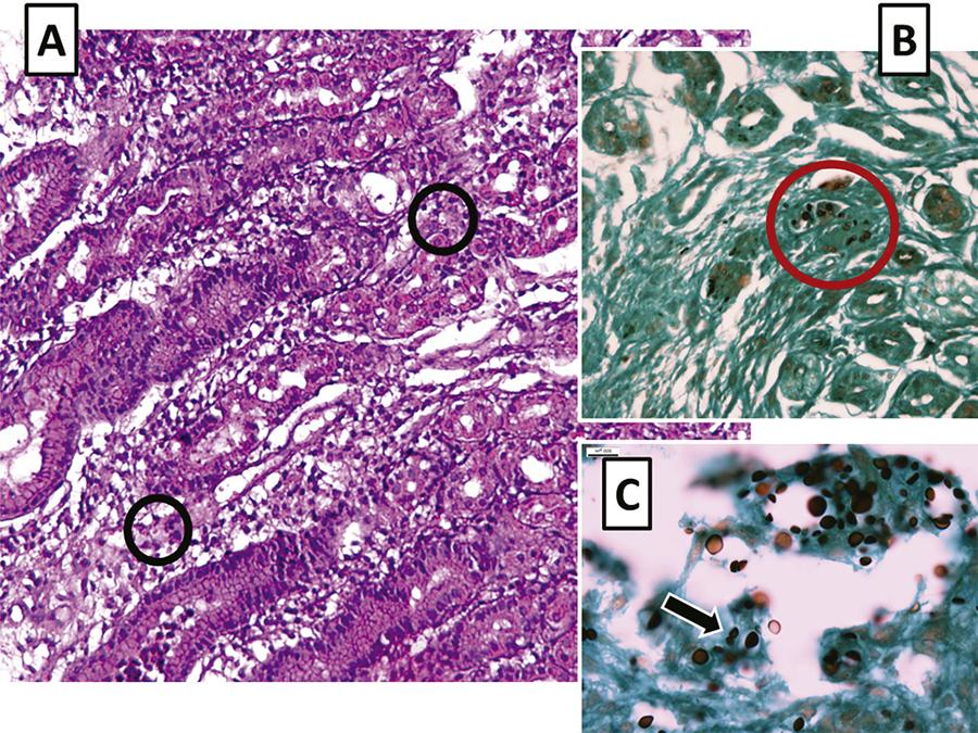 A) Hematoxylin and eosin staining (original magnification 200 x) discloses oxyntic glands in the body of the stomach with marked edema and a lymphoplasmacytic inflammatory reaction of the lamina propria. Extracellular varied-sized round structures with a halo clearing around each organism are seen (black circles); B) Grocott methenamine silver (GMS) staining (original magnification 200 x) unmasks variable-sized yeast-like structures (red circle); C) Higher resolution (original magnification 400 x) GMS staining shows some organisms with a narrow-based budding (arrow) consistent with Cryptococcus spp.
