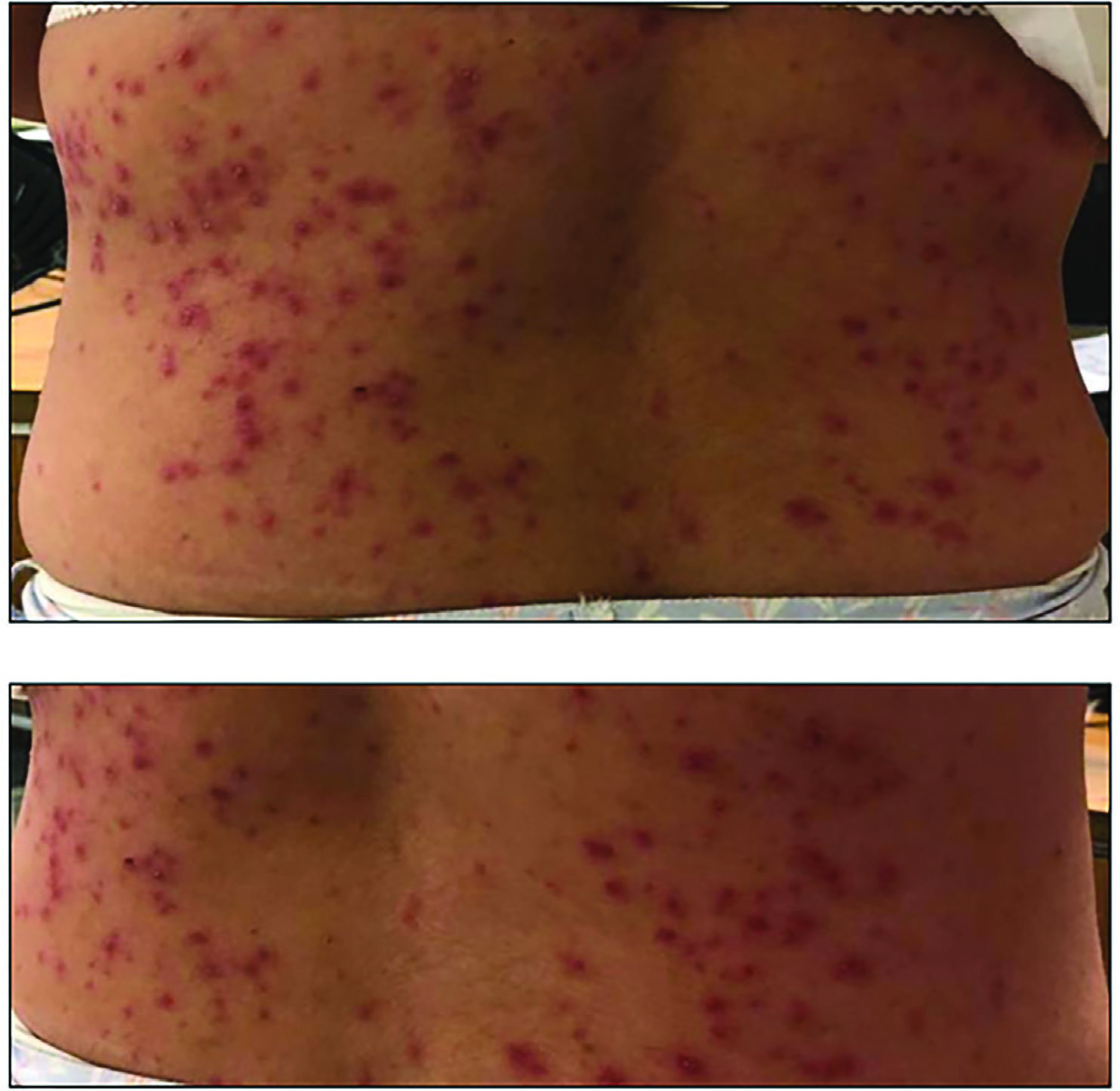 Petechial rash on the thorax of the patient.