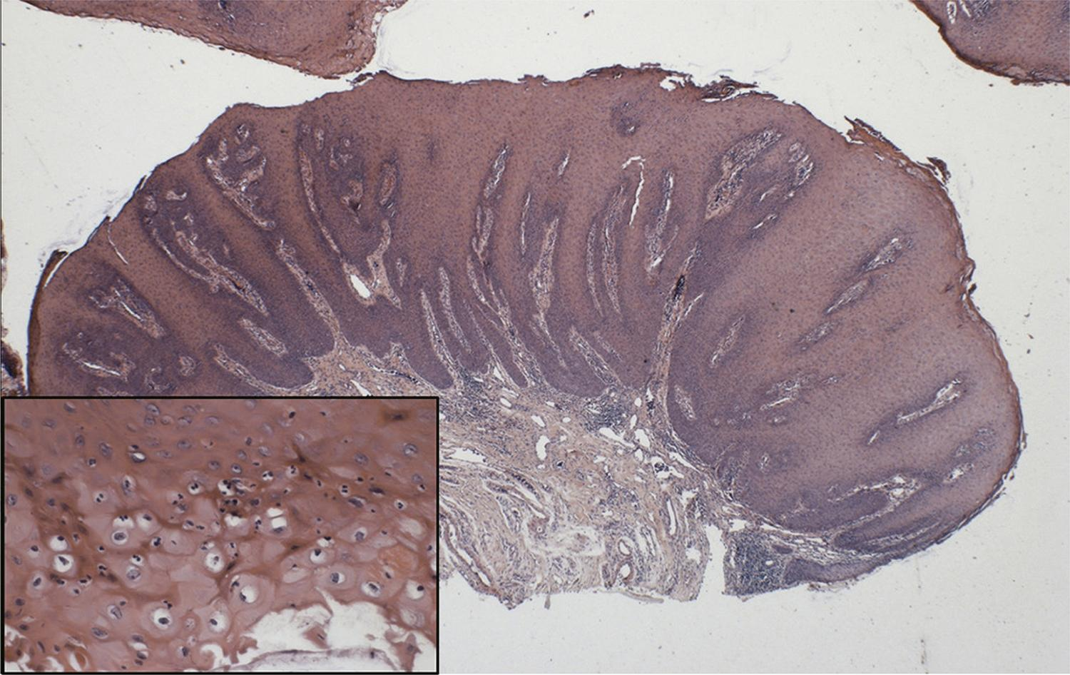 Histopathological examination of the lesion showing epithelial proliferation forming projections towards the connective tissue. In detail, epithelial cells showing a clear perinuclear halo compatible with koilocytosis.