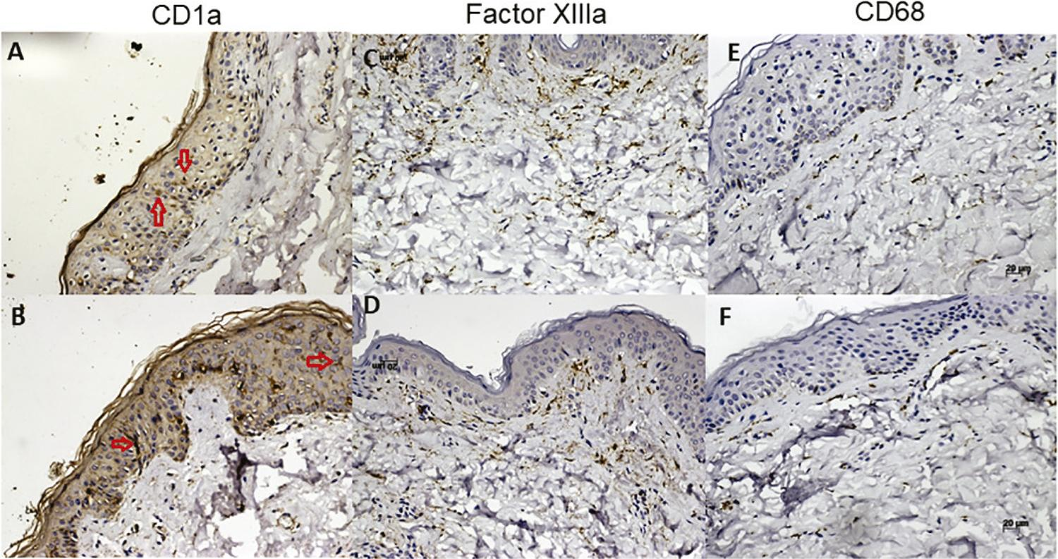 Immunohistochemistry pattern of CD1a, Factor XIIIA and CD68. Cells density of CD1+ cells (red arrow) in lesion areas (A) and in a healthy control skin (B) Cell density of factor XIIIa+ cells in lesion areas (C) and in a healthy control skin (D) CD68+ cells in lesions areas skin (E) in a healthy control skin. Magnification: x 200.