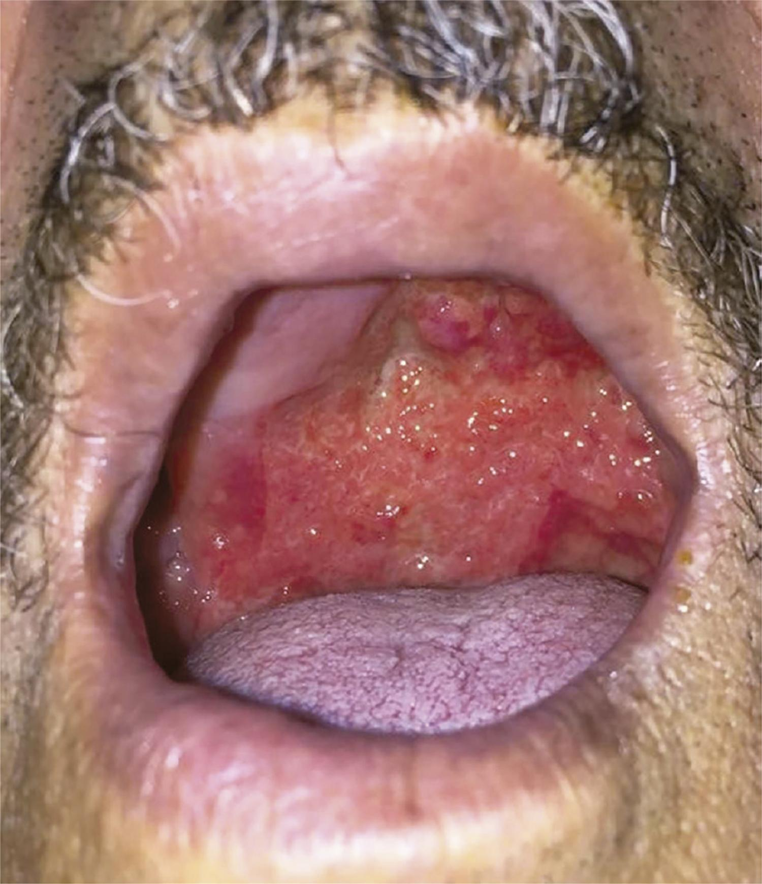 Infiltrative oral lesion, painful and smelly, similar to moriform stomatitis, with an irregular hyperemic surface located on the palate.