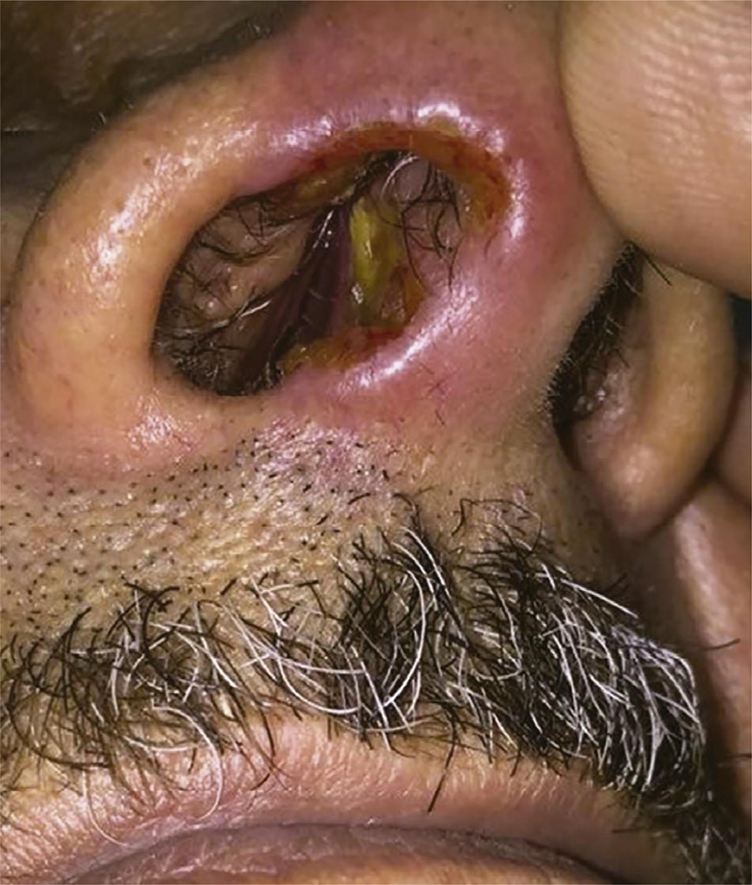 Ulcerative lesion in the right nasal mucosa and skin.
