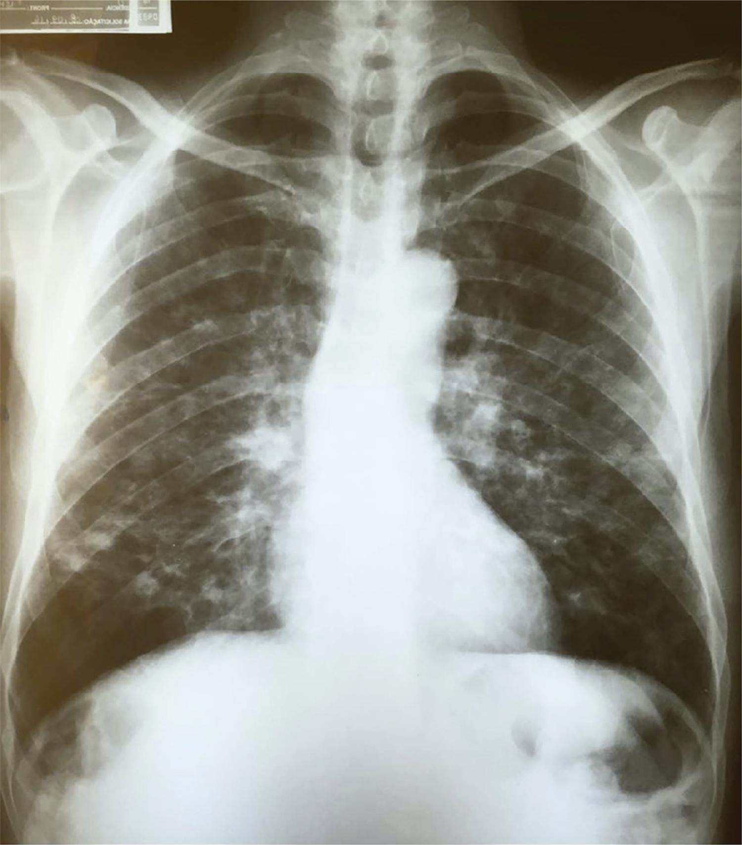 Chest x-ray showing nodules with predominantly central distribution affecting both lungs, some with signs of cavitation and bilateral perihilar reticular infiltrate.