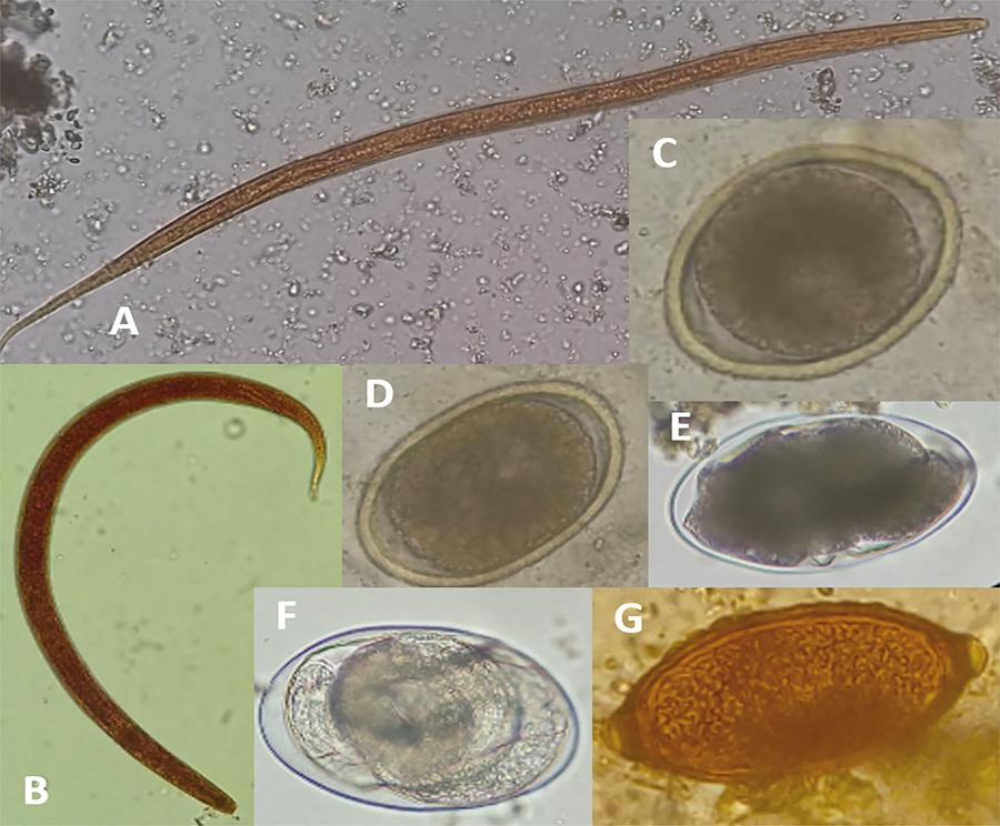 Parasitic structures found on microscopy. A and B: nematode larvae; C and D: Toxocara spp eggs; E and F: Hookworm eggs; G:Trichiuris spp egg