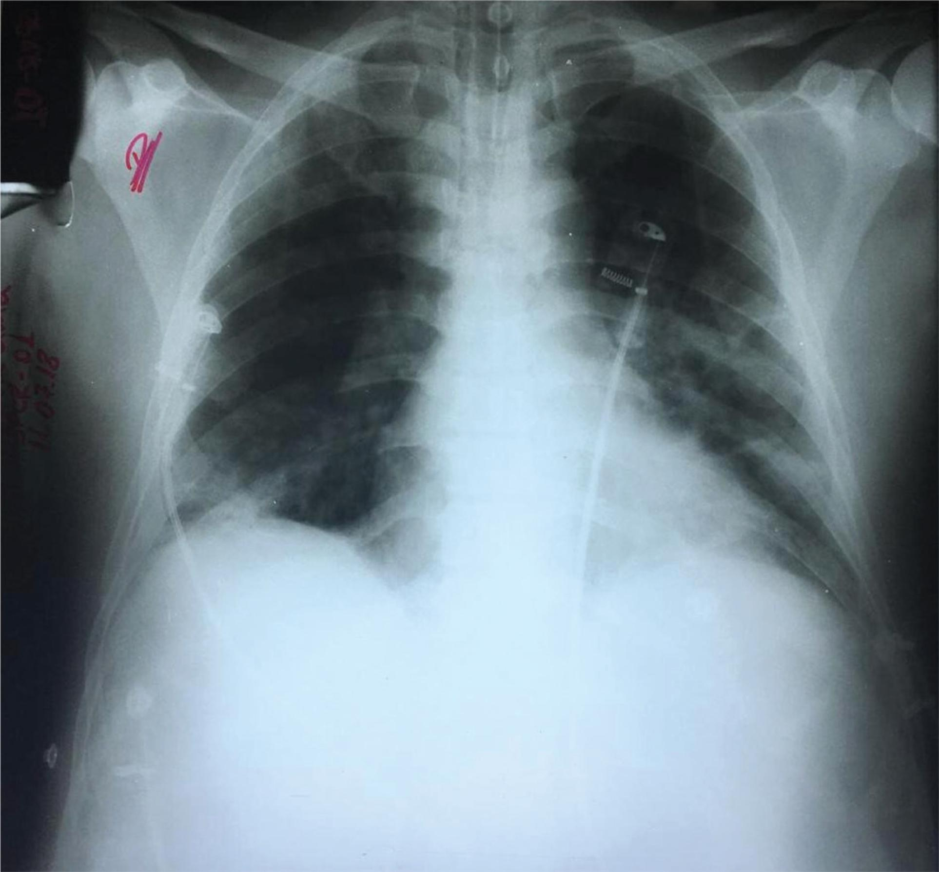 Chest x-ray taken on the third day of hospitalization showing areas of confluent peribronchial consolidation.