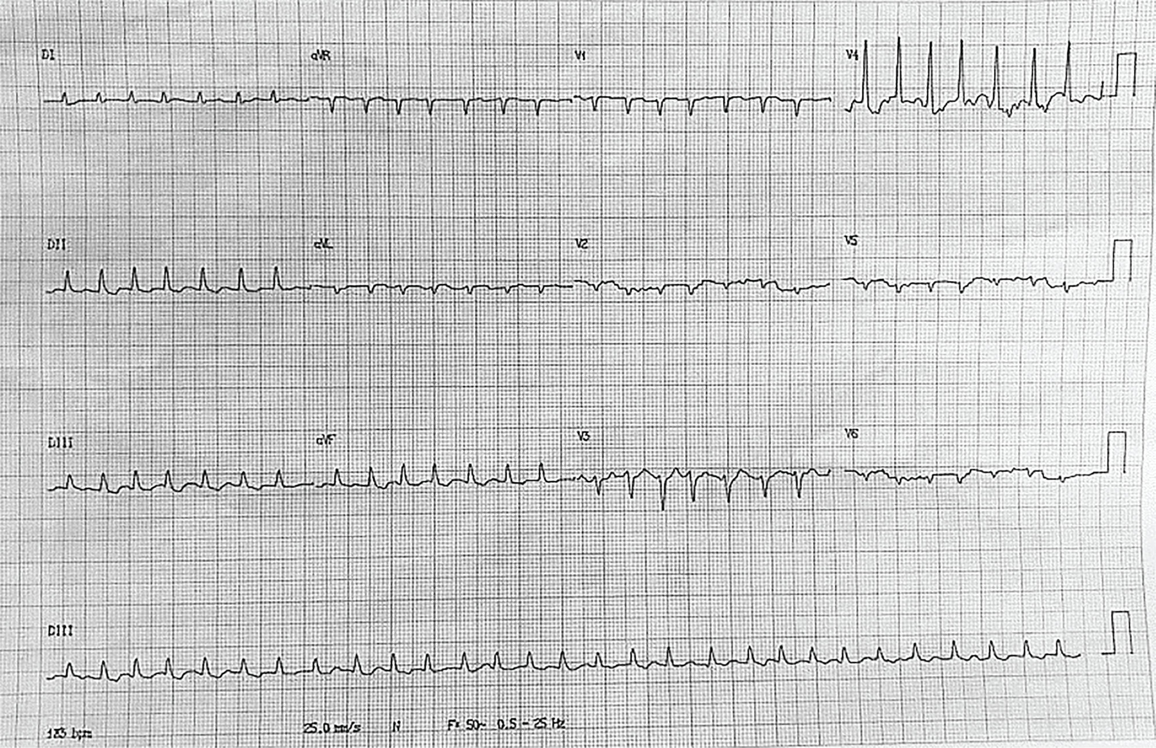 Atrial fibrillation present on the ECG.
