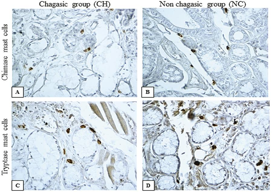 - Chimase mast cells and tryptase mast cells in the lingual salivary glands of individuals with Chagas disease (CH) and without Chagas disease (NC). Positive immunostaining for chimase in a CH group (A) and in a NC group (B); positive tryptase immunostaining in a CH group (C) and in a NC group (D) (Immunohistochemistry, 400 X).