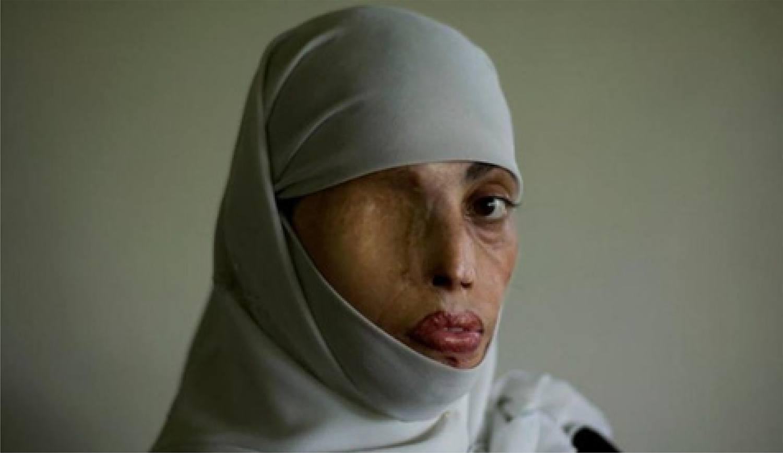Saira, paquistanesa fotografada pelo espanhol Emílio Morenatti, 2009.